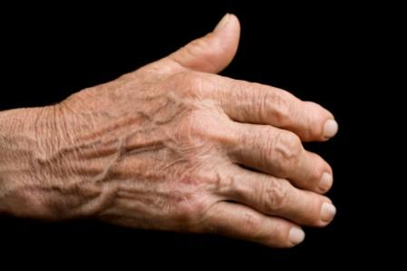 evidence of arthritis in old age