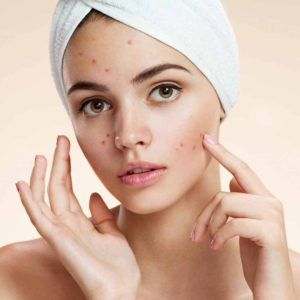 Black Seed Oil can help with acne and spots outbreak.